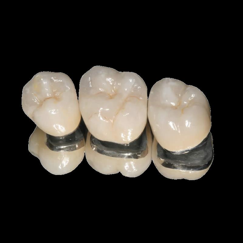 JSB Dental Lab Crown And Bridge